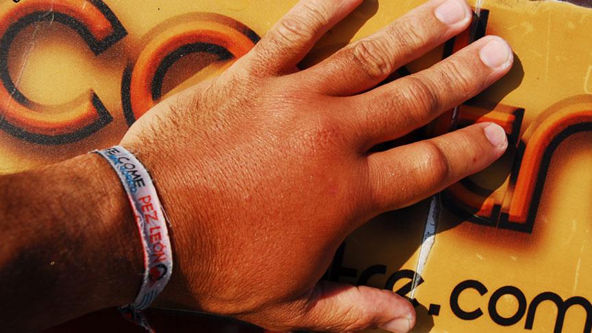 Infeccion de una mano tras ser picado por un pez leon